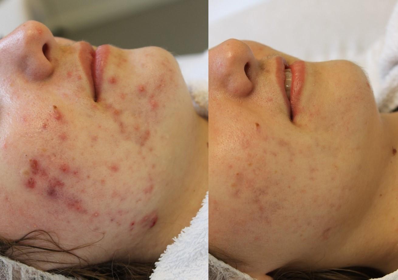 Op dit moment begeleiden wij bij Laserkliniek Zwolle een patiënt, tijdens een acne therapie behandeling om zo acne vulgaris te verminderen. Het resultaat is veelbelovend en de patiënt is nu al erg blij met haar gladde huid!