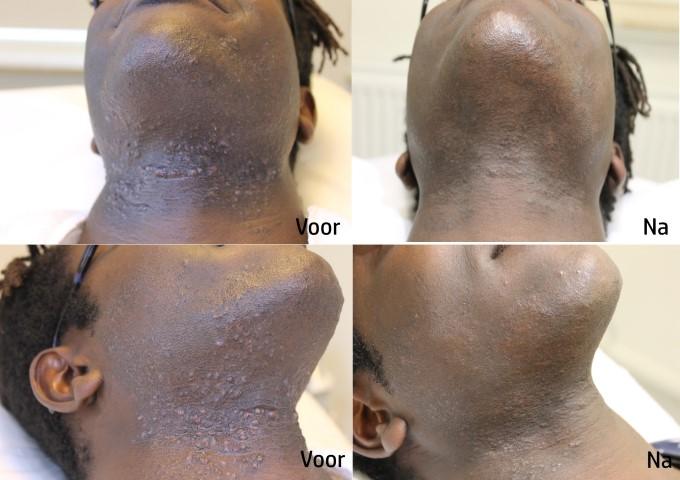 Folliculitis barbae ofwel ontstekingen en ingegroeide haren in de baardstreek; een nare aandoening die bij Laserkliniek Zwolle uitermate goed kan worden behandeld!