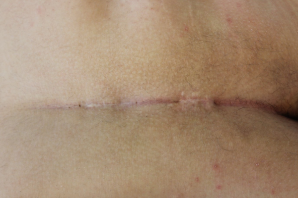 De huidaandoening Sinus Pilonidalisbeter bekend als haarnestcyste - Laserkliniek Zwolle-Huidtherapie