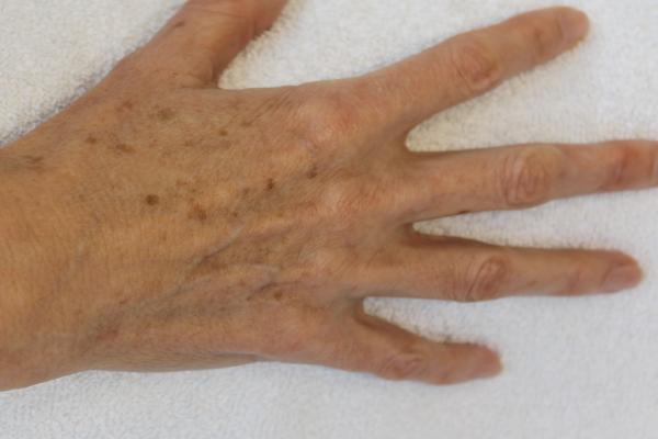 Pigmentvlekken zijn er in verschillende vormen. Laserkliniek Zwolle-huidtherapie vertelt u er over in gratis consult