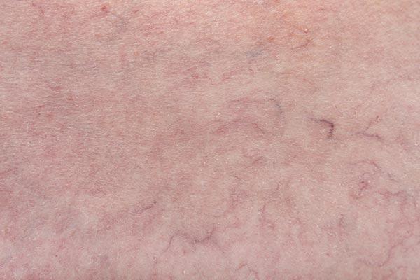 Beenvaatjes zijn de kleinste blauwkleurige en rode spataderen op de benen. Deze huidaandoening noemen ze bezemrijs. Laserkliniek Zwolle-Huidtherapie