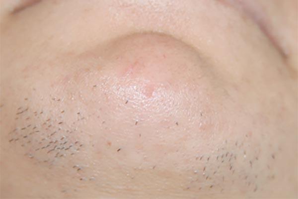 Hypertrichosis is een huidaandoening van overmatige haargroei op plaatsen waar al van nature enige haargroei is. Laserkliniek Zwolle kan u helpen.