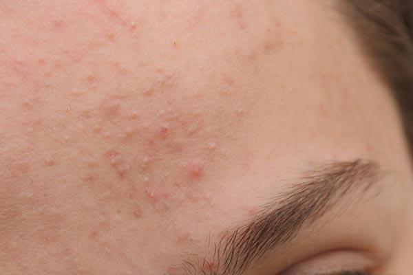De huidaandoening acne staat met stip op nummer 1 als meest voorkomend aandoening. Acne berust op een ontsteking van de huid rondom de talgklieren.