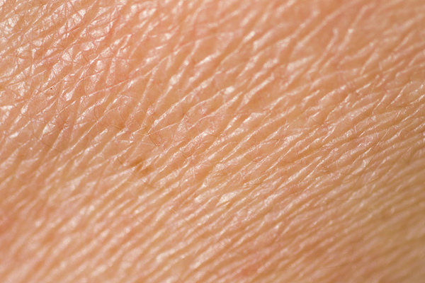 Een droge huid is een veelvoorkomende huidaandoening. Laserkliniek Zwolle-Huidtherapie