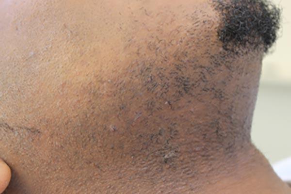 Laserbehandeling donkere huid VOOR-NA