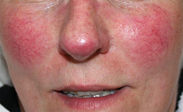 Een opvallend rode huid kan als zeer storend worden ervaren en in sommige gevallen zal de roodheid niet vanzelf weggaan. Laserkliniek Zwolle-Huidtherapie