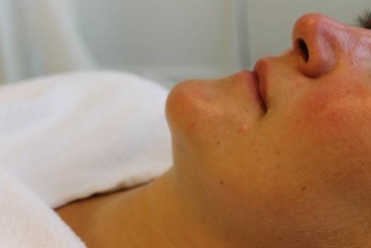 Na foto van een behandeling met lasertherapie bij Laserkliniek Zwolle