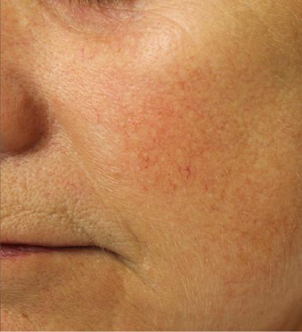 Foto van een Vaatlaser behandeling bij Laserkliniek Zwolle-Huidtherapie na de behandeling