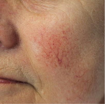 Couperose is een huidaandoening waarbij de haarvaatjes in het gezicht variëren van kleur. Laserkliniek Zwolle-Huidtherapie