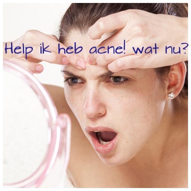 Help ik heb acne! Wat nu? Michelle Janssen, huidtherapeut bij Laserkliniek Zwolle over acne… een aandoening die voorkomt bij alle leeftijden!