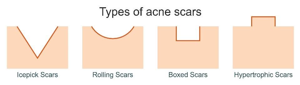 Hoe zien acnelittekens er uit? Huidzorg vragen bij Laserkliniek Zwolle-Huidtherapie