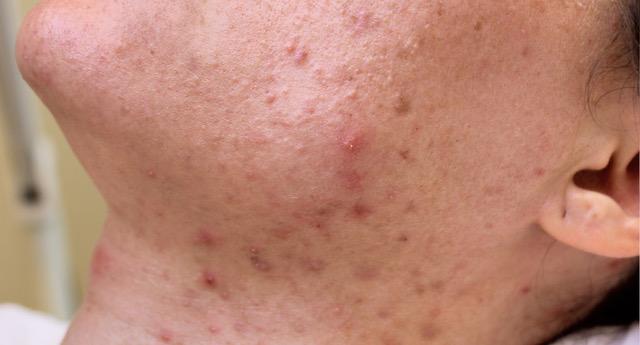 Foto van Meike voor een behandeling bij Laserkliniek Zwolle-Huidtherapie om Acne te verminderen