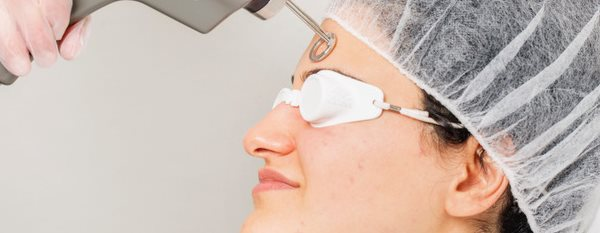 De non-invasieve behandelingen tegen huidveroudering en huidverslapping