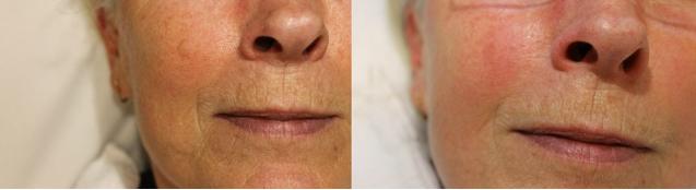 Hoe ontstaat huidveroudering?