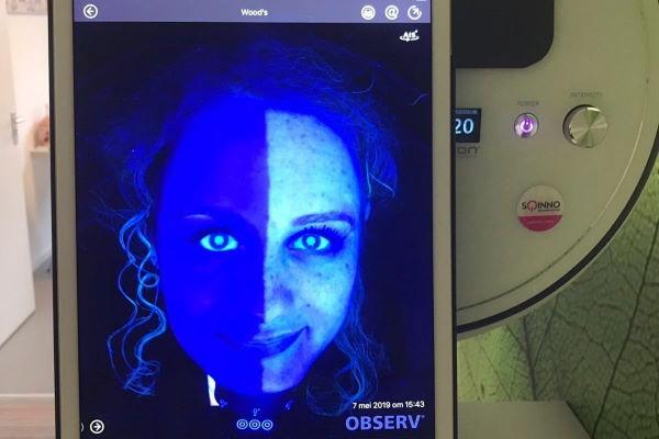 Vraag de huidtherapeut van Laserkliniek Zwolle om een gratis huidscan te maken met de Observ. Zo kun je de beste huidverzorging zoeken passend bij het huidtype en eventuele huidklachten.
