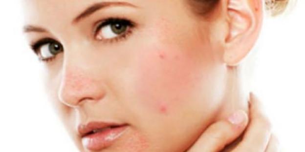 Blozen, blijvende roodheid in het gezicht, bultjes en puistjes dit zijn de vervelende verschijnselen die passen bij het beeld van rosacea.