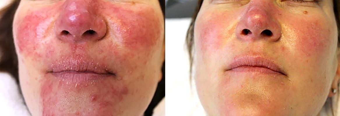 De huid voor en na 2 Rosacea laserbehandelingen bij Laserkliniek Zwolle-Huidtherapie