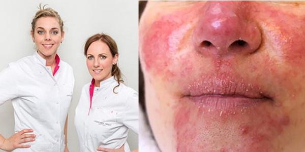 Zo verzorgen huidtherapeuten Michelle Janssen en Anouk Bliekendaal rosacea