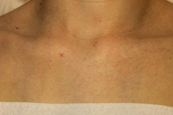 Foto vóór een behandeling met de vaatlaser voor het verminderen van spider naevus bij Laserkliniek Zwolle-Huidtherapie