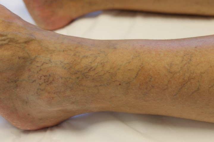 Foto van spataderen vóór vaatlaser therapie bij Laserkliniek Zwolle-Huidtherapie