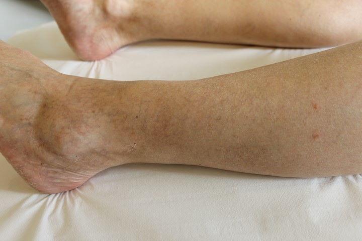 Foto van spataderen ná vaatlaser therapie bij Laserkliniek Zwolle-Huidtherapie