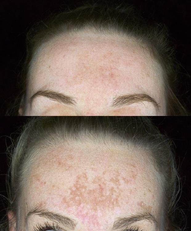 Voor en na een behandeling bij melasma door Laserkliniek Zwolle
