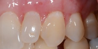 After gum graft