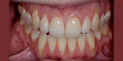 Before gum graft