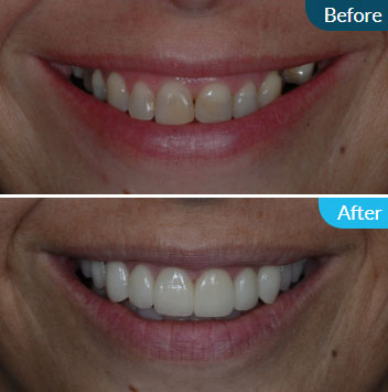 Dental Veneers Limerick City