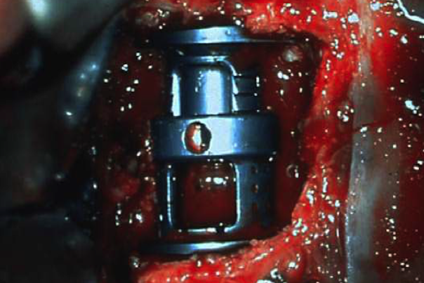 A cage filled with bone material is inserted to replace the resected vertebral section