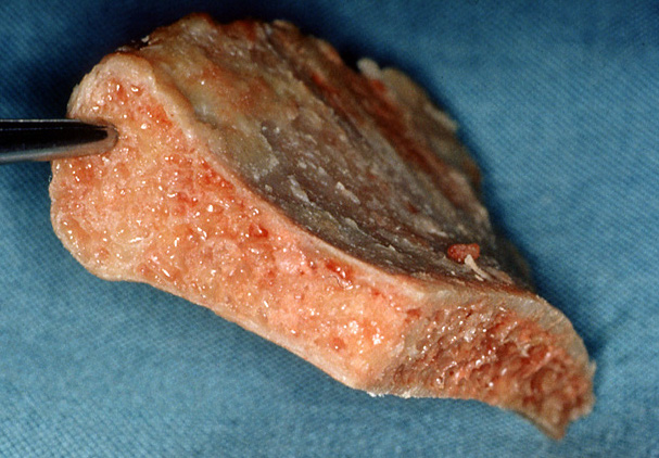Autologous bone taken from the iliac crest of the pelvis