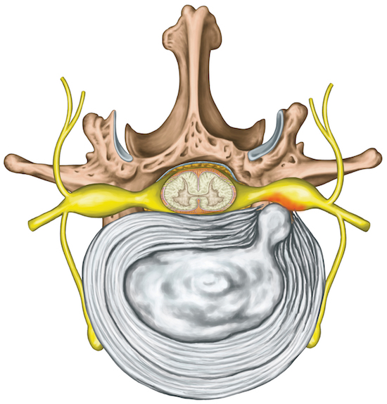 A herniated disk causes pressure on the nerve, pain and neurology