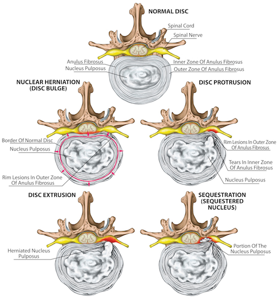 Illustration of the different stages of disk herniation