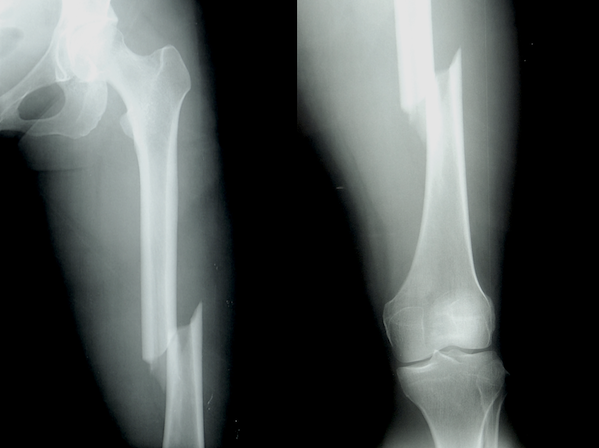 Femur shaft fracture