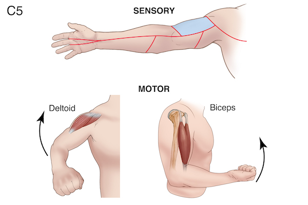 Sensory and motor function altered by C5 radiculopathy