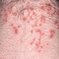 mite-bites-rash