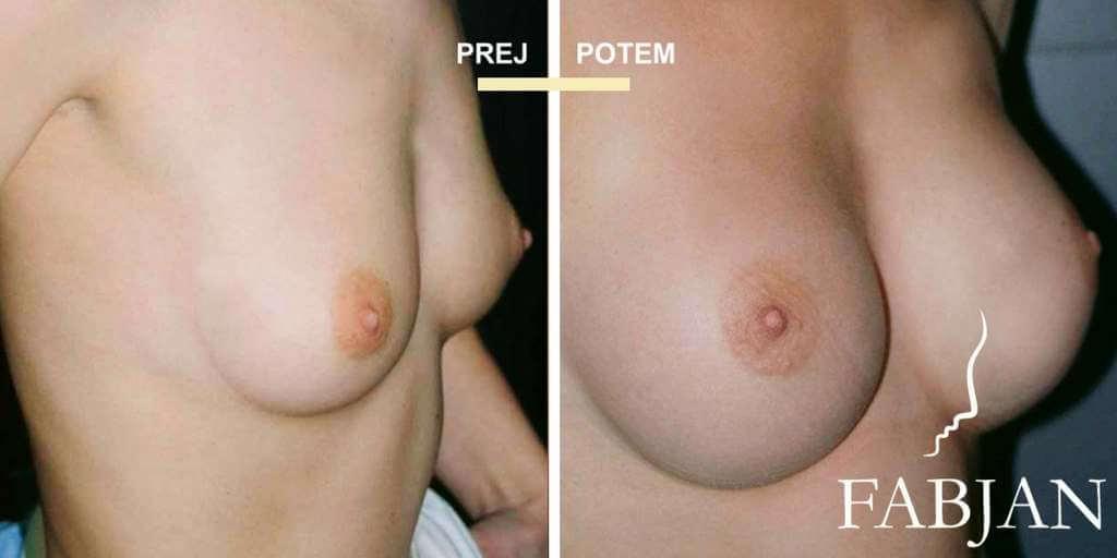 povečanje dojk
