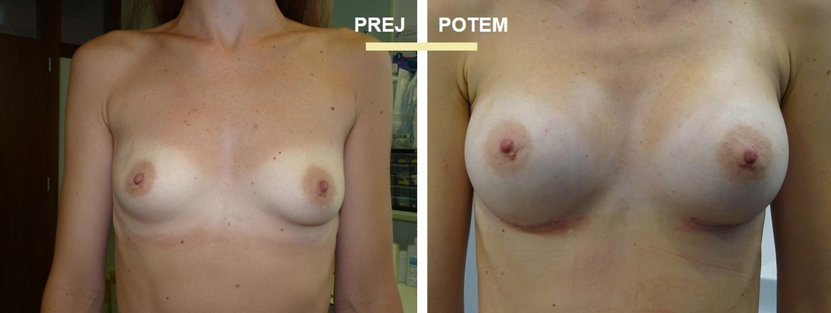 korekcija prsi
