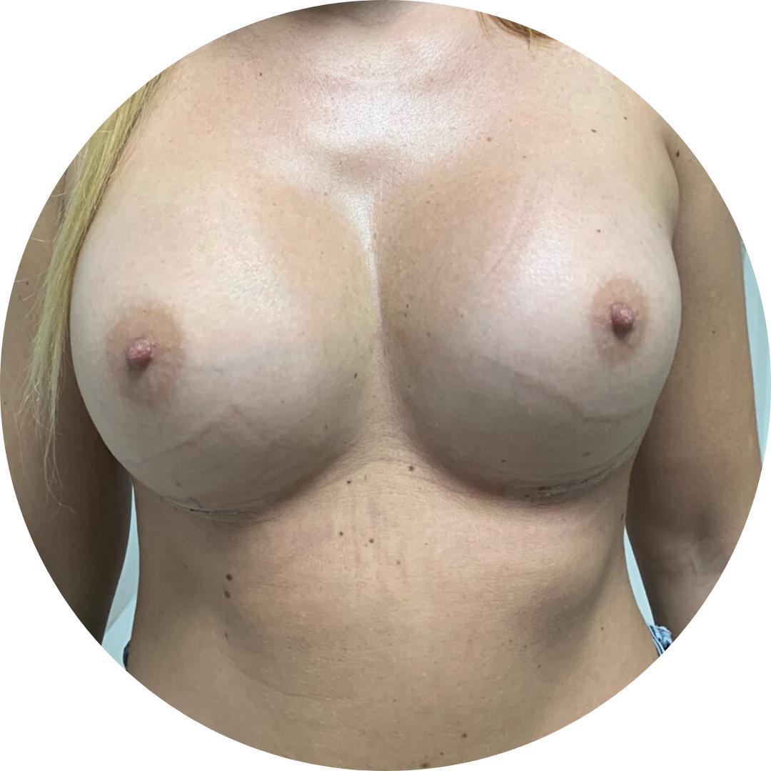 povečava prsi matic fabjan