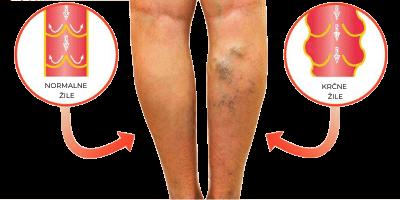 operacija krčnih žil