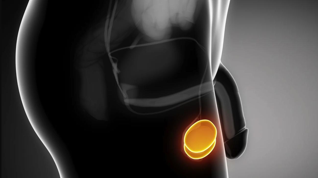 Kirurška vstavitev testikularne proteze