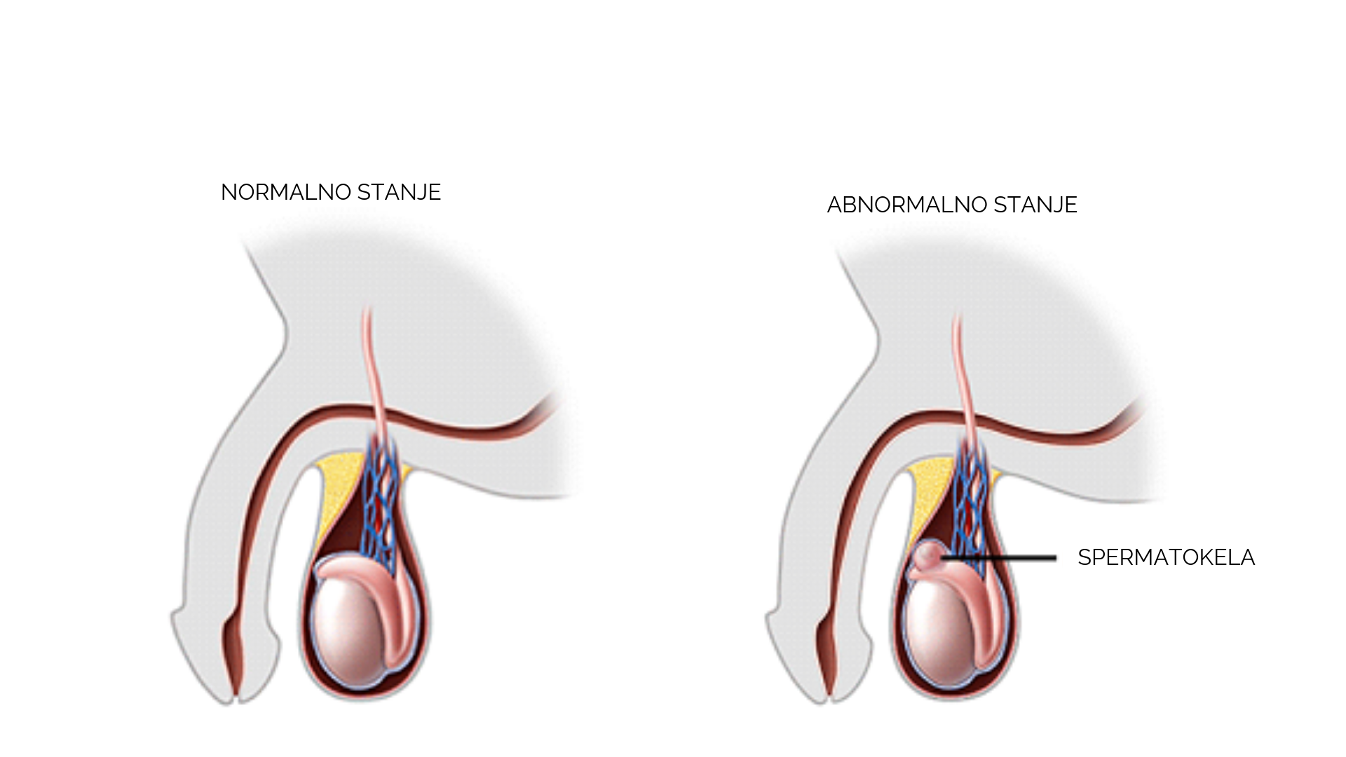 Izrezanje spermatokele