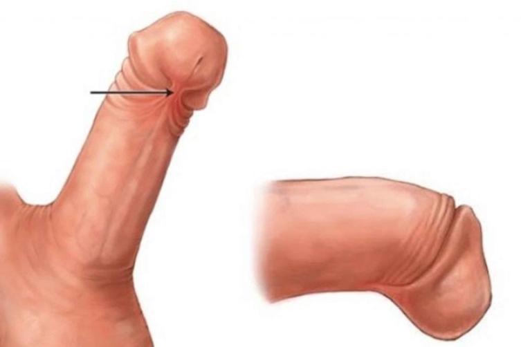 testis proteza