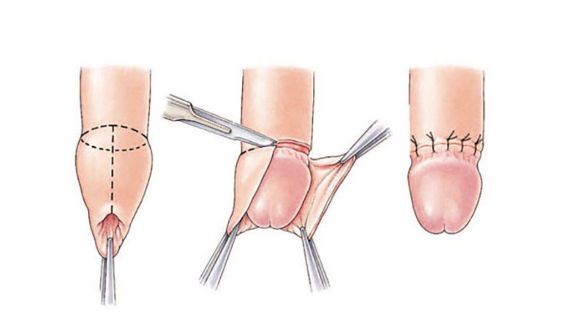 Cirkumcizija - obrezovanje penisa