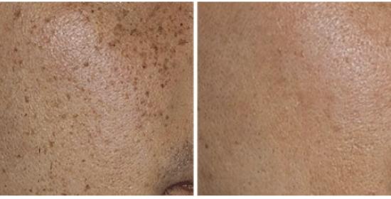 lasersko zmanjševanje pigmentacije
