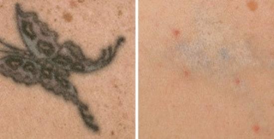laserska odstranitev tetovaže
