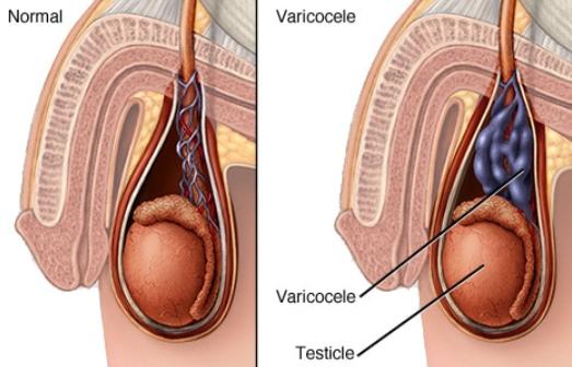 Operacija varikokele (varice skrotuma)