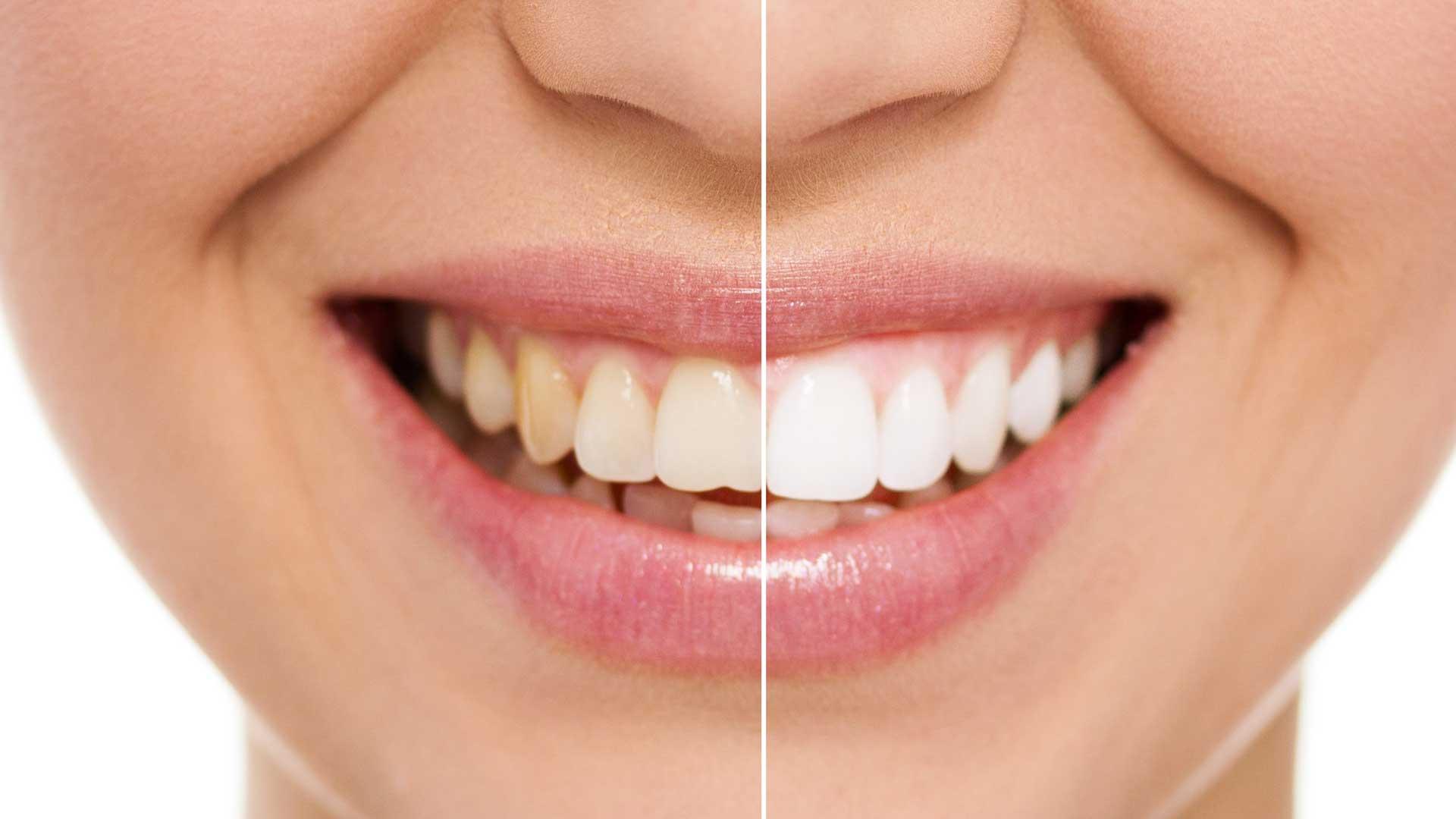 Cosmetic Dentistry Hillarys