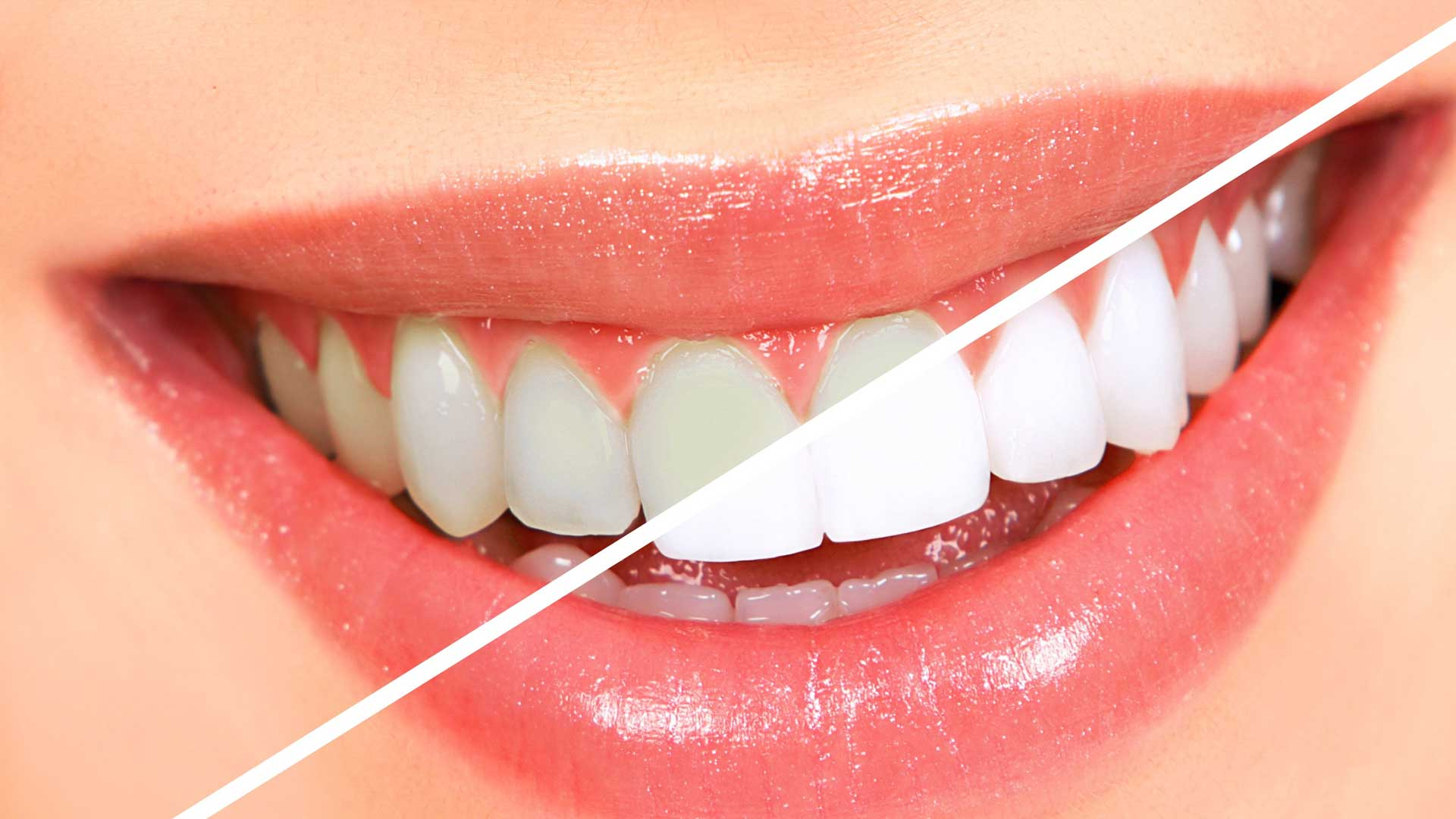 Teeth Whitening Hillarys