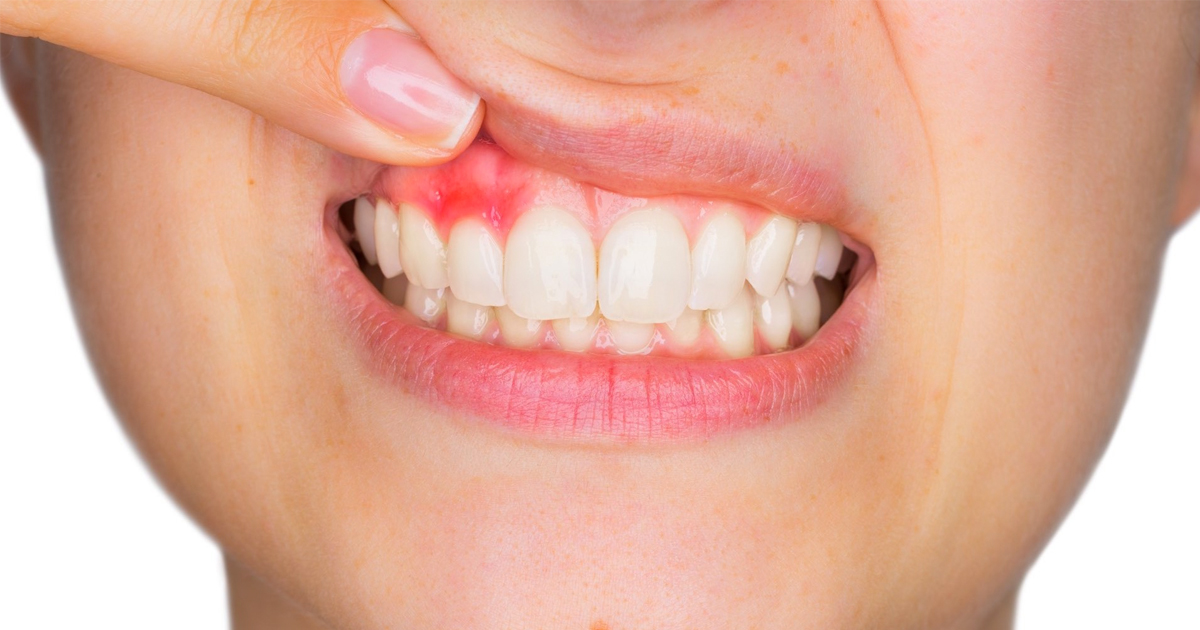 Oral Cancer Detection and Treatment